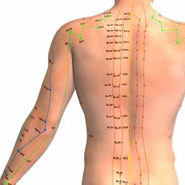 Acupuncture clinic in derby